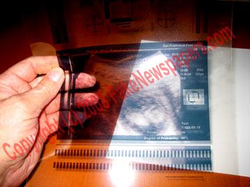 fake_ultrasound_acetate.jpg